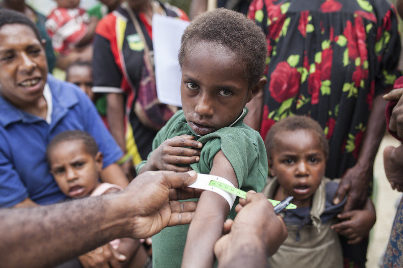 A boy is tested for malnutrition with a Mid upper Arm Circumference band (MUAC) in Papua New Guinea
